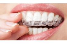 Изкуствен емайл може завинаги да премахне чувствителносттта на зъбите и естетичните дефекти на зъбния емайл