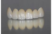 Циркониеви зъбни мостове. С какво са по-добри