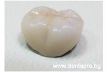 Зъбна корона – кога е необходима