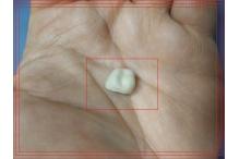 6 причини за падане на зъбна корона