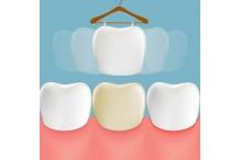 Знаете ли, че зъбни дефекти могат да се скрият със зъбни корони