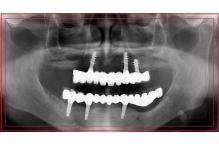 Зъбни импланти – какво е добре да знаете преди да се решите