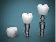 Какви са рисковете при зъбните импланти?