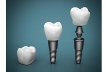 Какви са рисковете при зъбните импланти