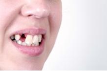 Какви проблеми могат да причинят липсващите зъби в устата?