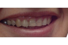 5 навика, които унищожават усмивки