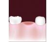 3 начина за заместване на липсващи зъби