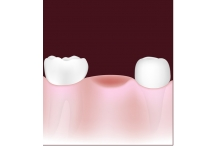 Three Ways to Replace Missing Teeth