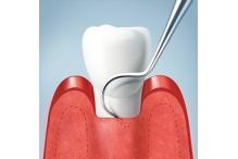 На какво се дължи отдръпването на венците