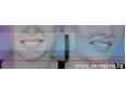 Липсващи зъби в устата – заместване със зъбни мостове и зъбни протези