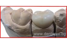 Каква е процедурата за изработка и поставяне на зъбна корона