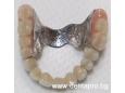 Зъбна протеза – кога се налага да се ползва