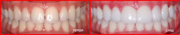 зъбни фасети