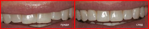 оформяне на зъбен емайл