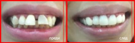 подобряване на усмивката