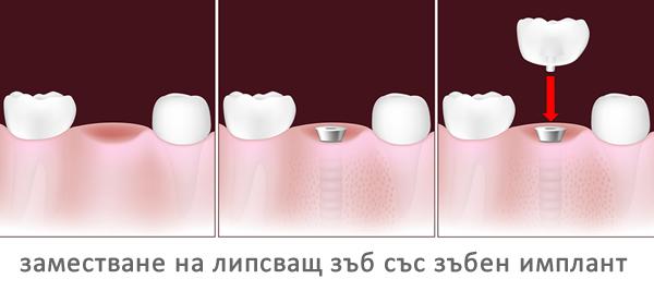 заместване на липсващ зъб със зъбен имплант
