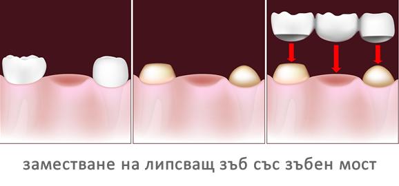 заместване на липсващ зъб със зъбен мост