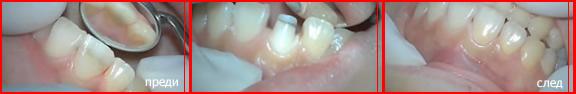 зъбна корона