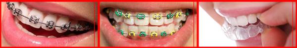 видове зъбни шини