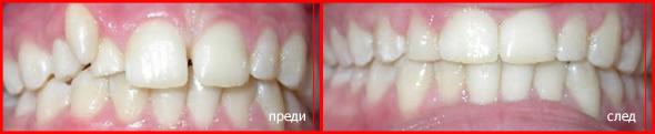 зъбни шини