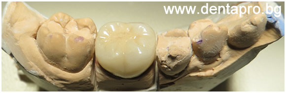 Зъбна корона върху модел